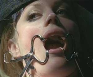 FRINGE-2-mouth-open.jpg